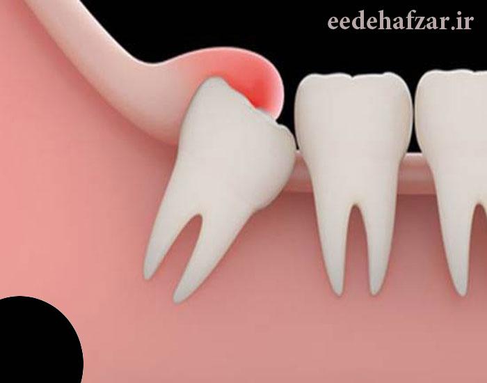 دندان عقل نیمه نهفته