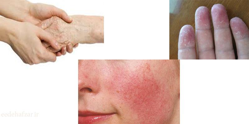علت نازک شدن پوست