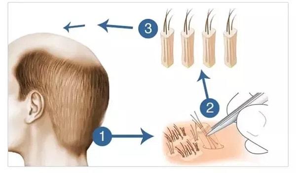 hair transplant fit